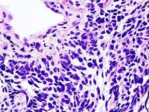Small cell carcinoma of the lung - Libre Pathology